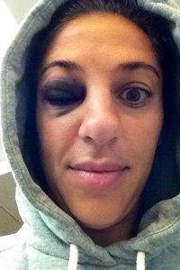 Carli Lloyd got this nasty black eye during training from the back of a teammate's head.
