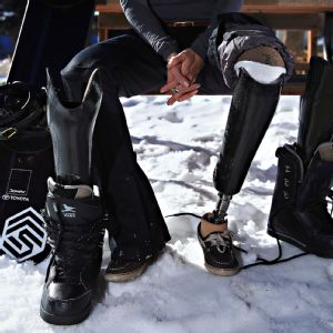 Amy Purdy was instrumental in dreaming and designing prosthetic feet that would enable her to become a world champion snowboarder.
