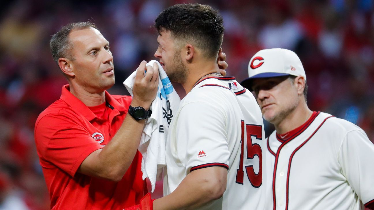 Senzel not in Reds' lineup after foul ball to eye